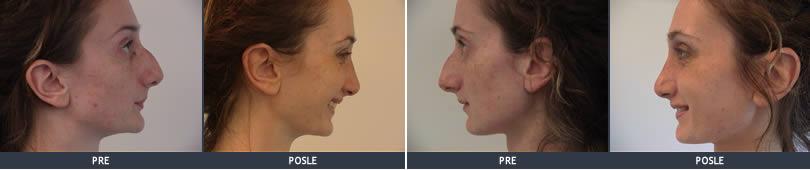 operacija nosa slike