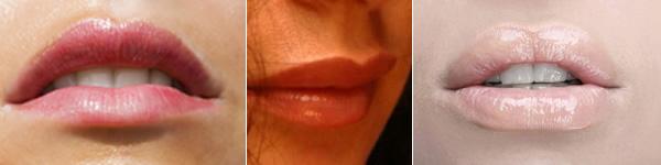 povecanje usana hirurski i filerima