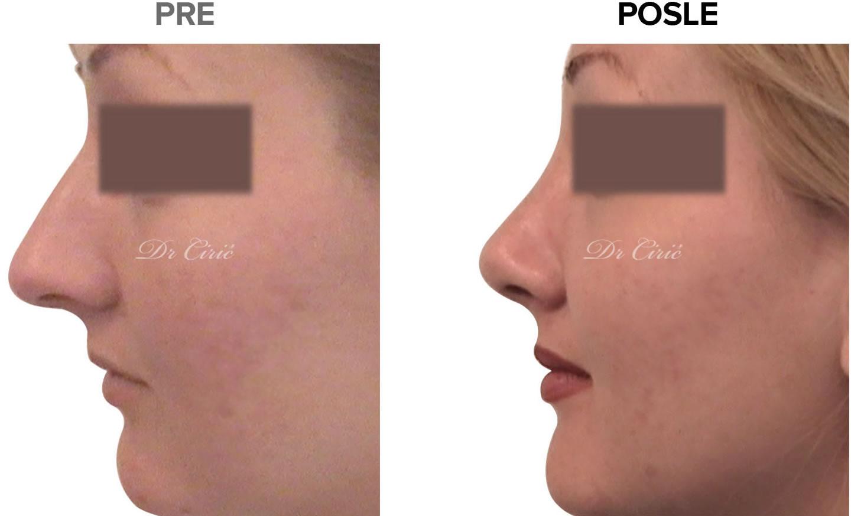 rinoplastika-korekcija-nosa-pre posle intervencije