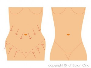 Abdominoplasty-drafts-1