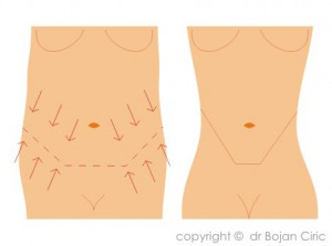 Abdominoplasty-drafts-2