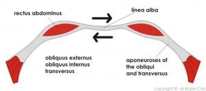 Abdominoplasty-drafts-5