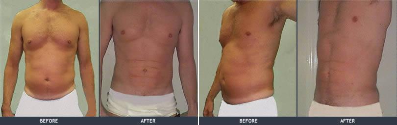 male pubic fat pad removal