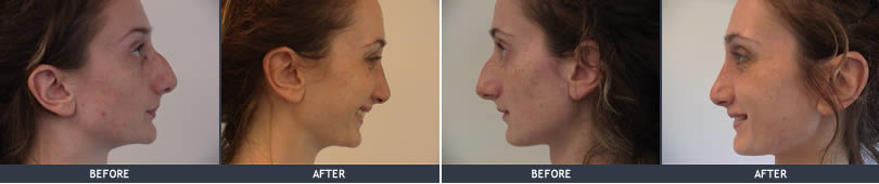 Nose correction Rhinoplasty picture