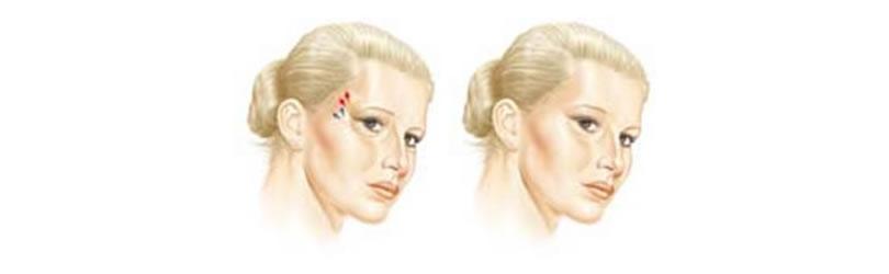 Podizanje i zakošenje uglova oka i obrva