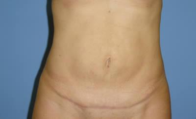 abdomenoplastika-2-posle