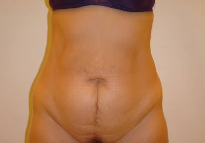 abdominoplasty picture 7 before