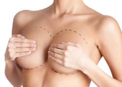 estetska hirurgija grudi