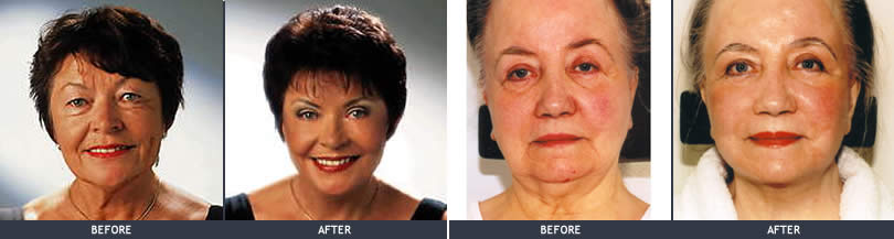facelifting face and neck before after