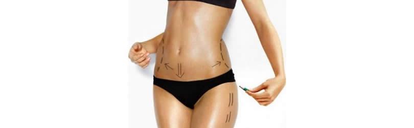 hirurgija tela