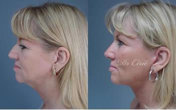 korekcija nosa pre posle dr ciric galerija