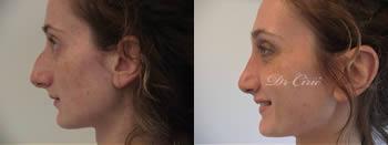 korekcija nosa pre posle intervencije