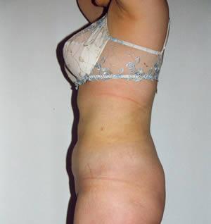 liposukcija 4 posle