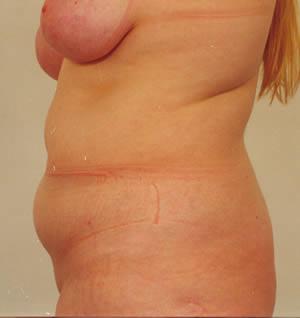 liposukcija 4 pre