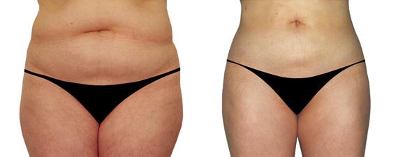liposukcija pacijent pre i posle intervencije dr ciric