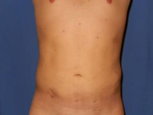 liposukcija1-posle