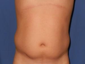 liposukcija1-pre