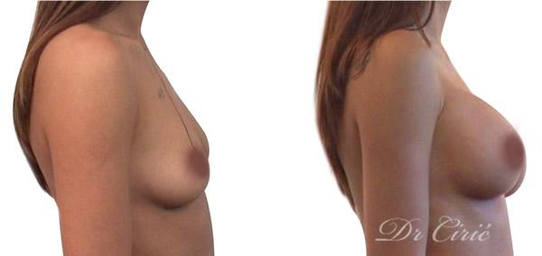 povecanje grudi implantatima pre i posle intervencije dr ciric