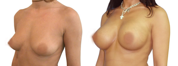povecanje grudi implantima pre posle 2018