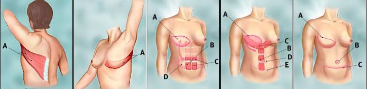rekonstrukcija dojke slika