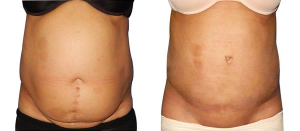 zatezanje stomaka pre i posle intervencije 2018