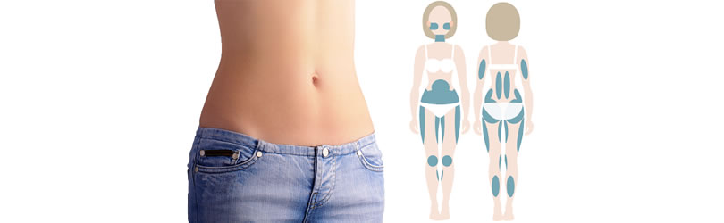 Oblikovanje lica i tela pomoću Ultrazvuka