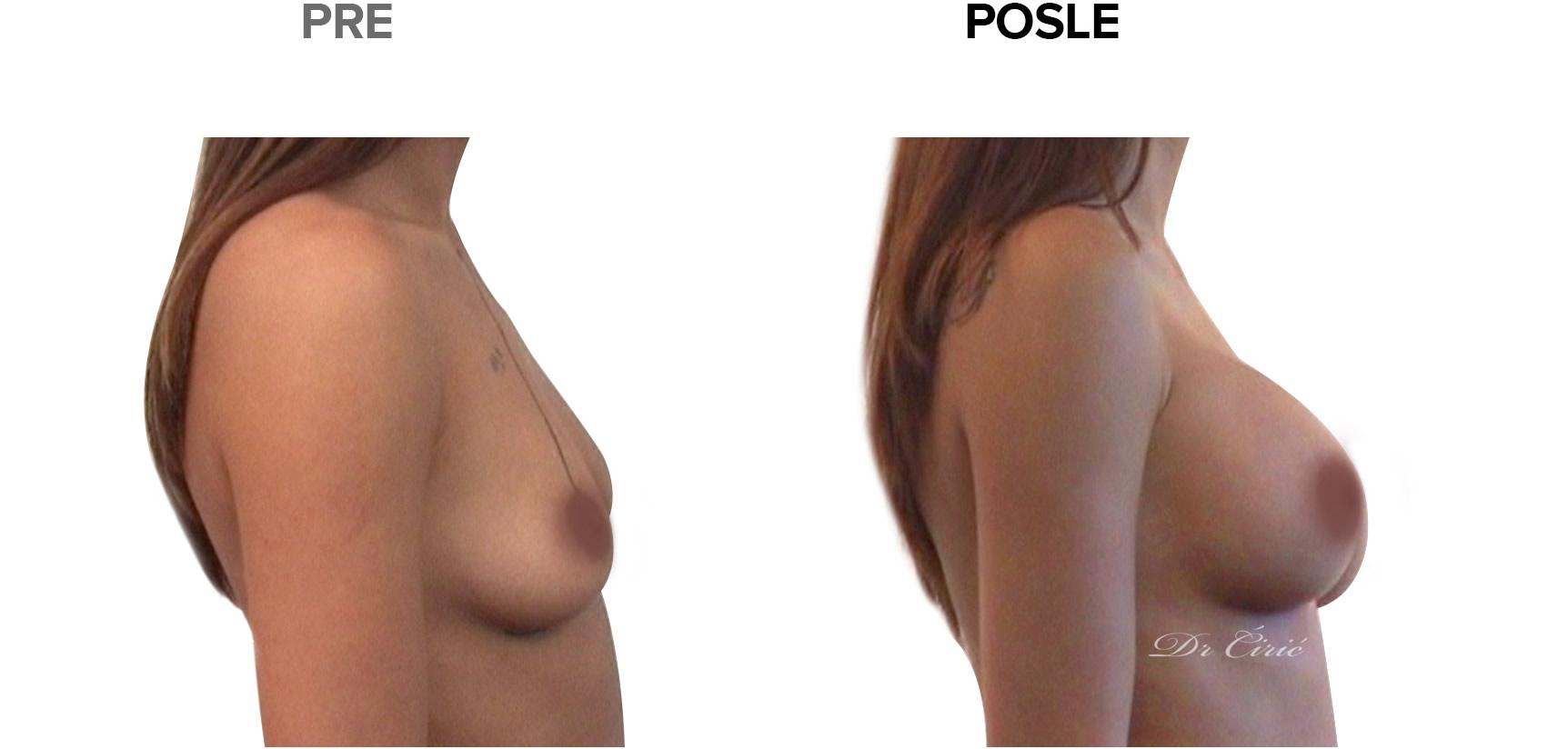 dr-ciric-korekcija grudi nakon trudnoce