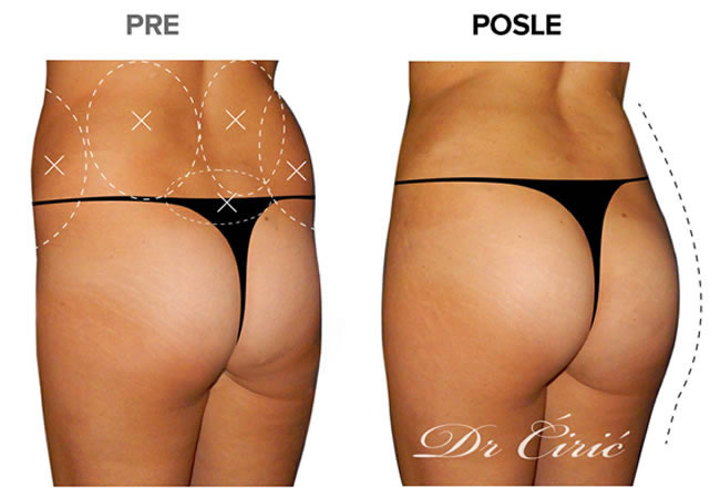 liposukcija i zatezanje zadnjice nakon trudnoce