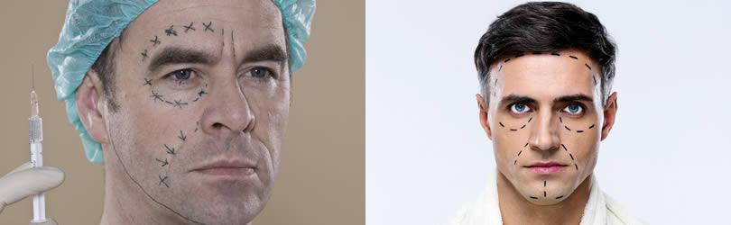 muskarci plasticna hirurgija