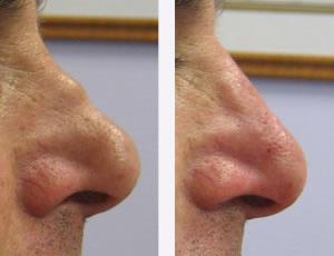 korekcija-nosa-dermalni-fileri
