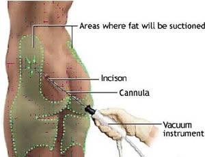 laser liposukcija