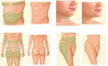 liposukcija delova tela