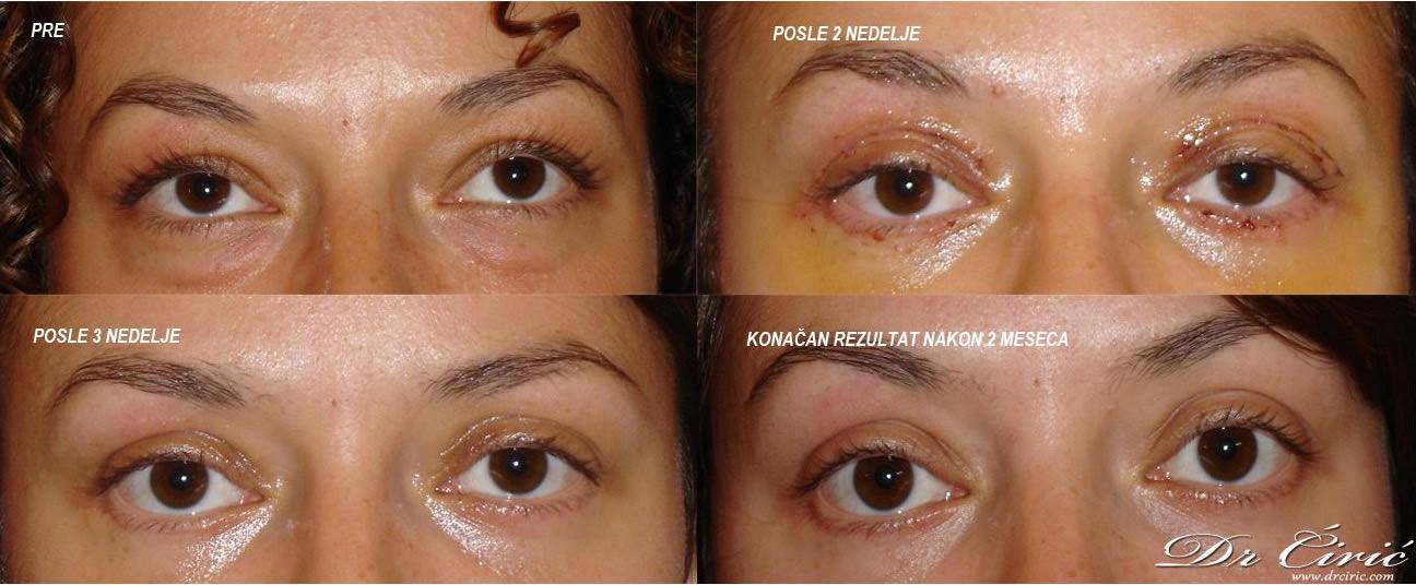 Pre Posle Operacija ocnih kapaka