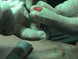 lipomatoza laser 1