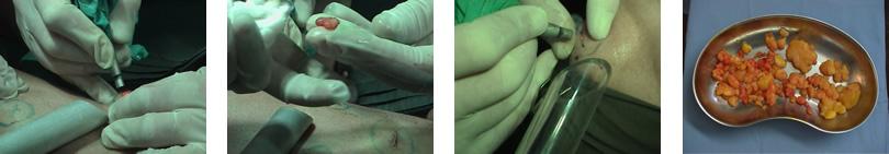 lipomatoza tretman laserom