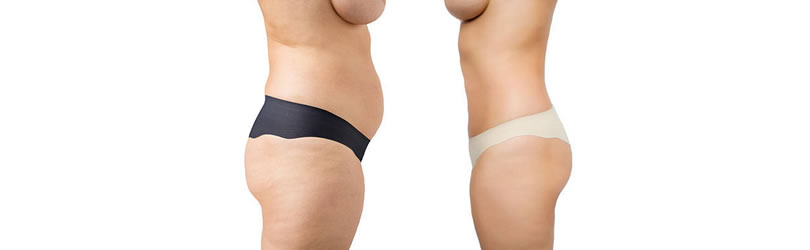 abdominoplastika i liposukcija blog