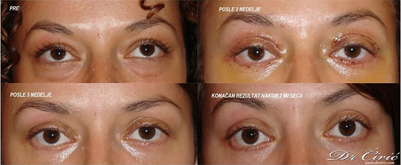 korekcija ocnih kapaka blog dr ciric