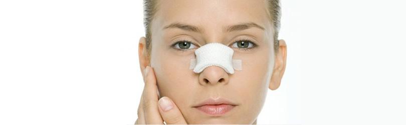 operacija nosa primer jednog pacijenta-1
