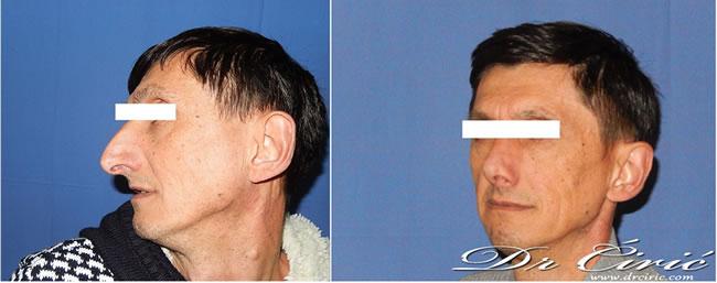 rinoplastika primer pacijenta muskarac