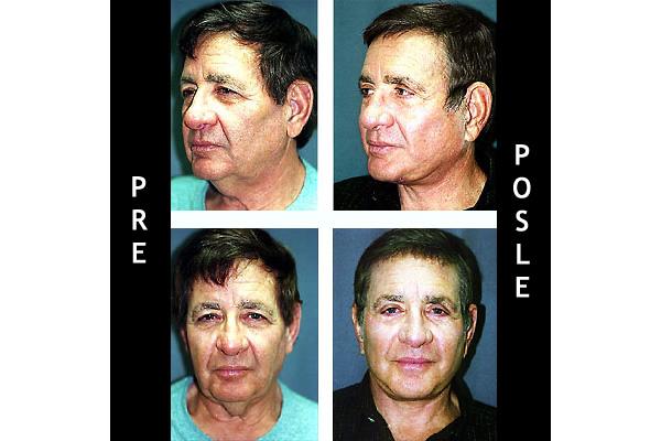 lifting lica i vrata - facelifting - dr BOJAN ciric