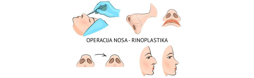 operacija nosa rinoplastika