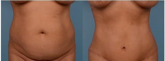 abdominoplastika beograd pre posle operacije